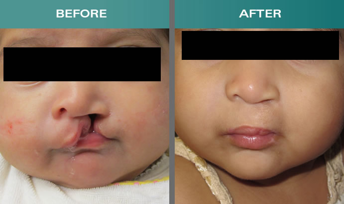 Cleft lip and Palate Treatment