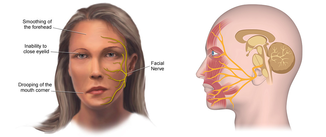 facial numbness with no paralysis