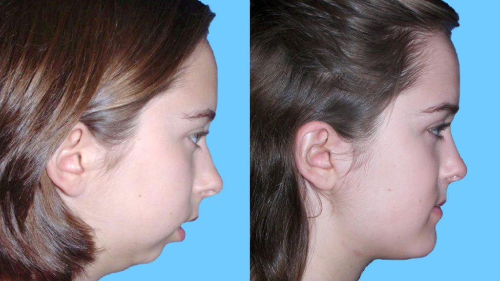 Lower Jaw Surgery
