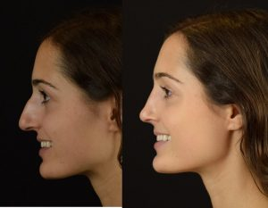 rhinoplasty-before-after-thrissur