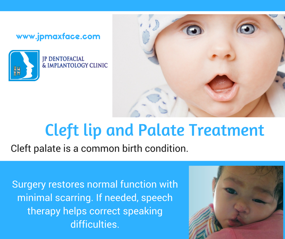the challenges of dealing with cleft lip and palate After having overcome some breastfeeding challenges with my first daughter, i was looking forward to an easier experience the second time around finding out that my second daughter, miriam, would be born with a unilateral cleft lip and palate was a cold shower - the first of many.